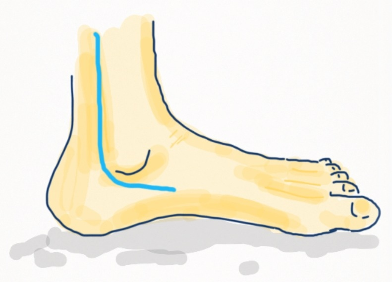 popping noise in ankle when walking